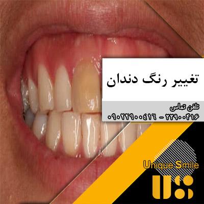 عوامل تغییر رنگ دندان