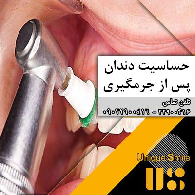 حساسیت دندان پس از جرمگیری