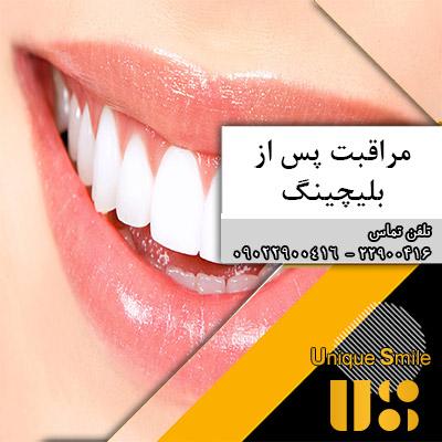 مراقبتهای پس از سفید کردن دندان