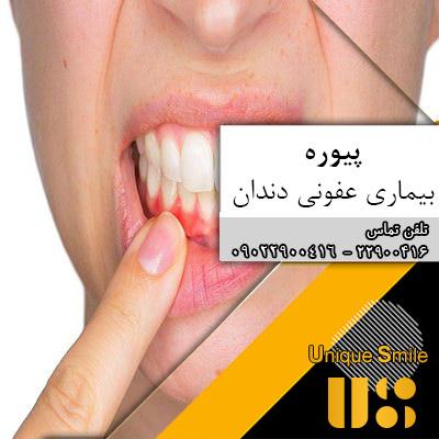 پیوره یک بیماری عفونی دندانی
