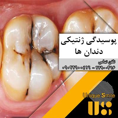 رابطه پوسیدگی دندانها و ژنتیک