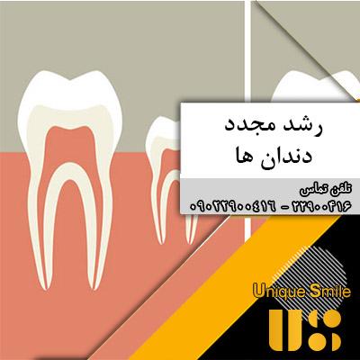رشد مجدد دندان ها