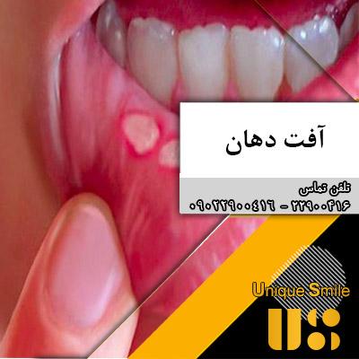 آفت پس از مراجعه به دندانپزشکی