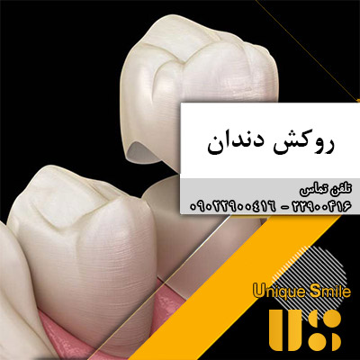 روکش های دندان