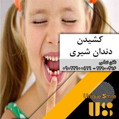 کشیدن دندان های شیری پیش از موعد