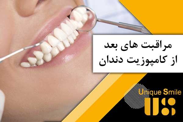 کامپوزیت دندان ها