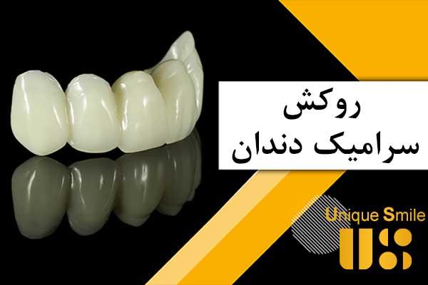 روکش سرامیک دندان