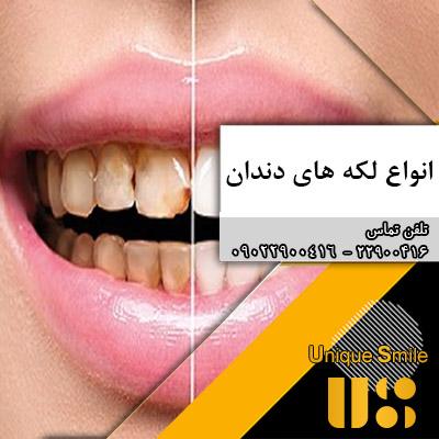 لکه دندان